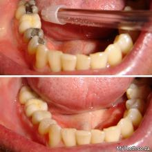 BEFORE:  Defective metal fillings.  AFTER:  New CEREC ceramic fillings all done in 1 visit.