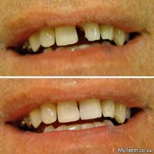 BEFORE:  Broken front tooth.  AFTER:  Tooth repaired in 1 visit by using composite bonding. NO injections needed.