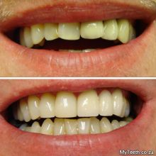 BEFORE: Crooked and stained teeth.  AFTER:  New Dental Bridge top left and Dental Veneers on front teeth.