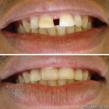 BEFORE:  Big gap between front teeth.  AFTER:  4 Front teeth were treated with White Composite Bonding in 1 visit.