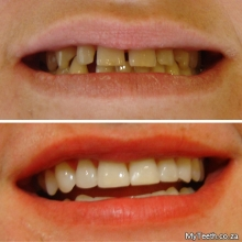 BEFORE:  Gaps between front teeth and yellow stained teeth.  AFTER:  Teeth Whitening & Composite Bonding were used to create the new look in 1 visit.