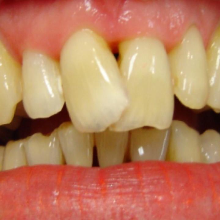 My front teeth are skew