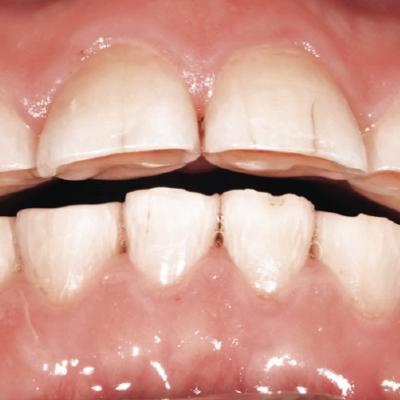 My teeth are worn