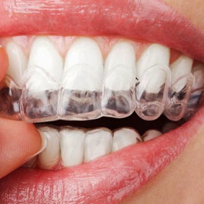 Custom Tray Teeth Whitening