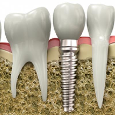 Dental Implants - Save Your Smile!