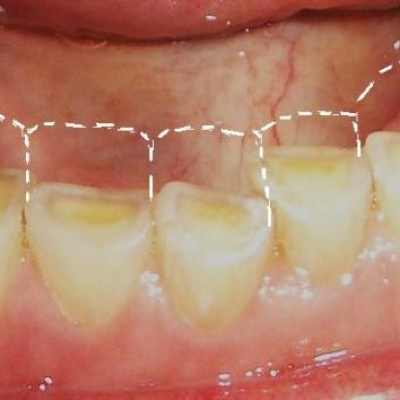 Treatment for tooth wear