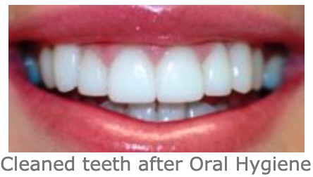Best Teeth whitening Cape Town