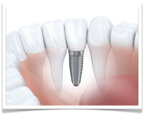 Why Dental Implants